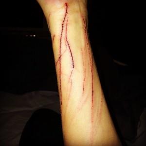Dieses Foto veröffentlichte Giulia Siegel am Freitag auf Instagram und Facebook. Es zeigt ihren rechten Unterarm nach einer Katzen-Attacke